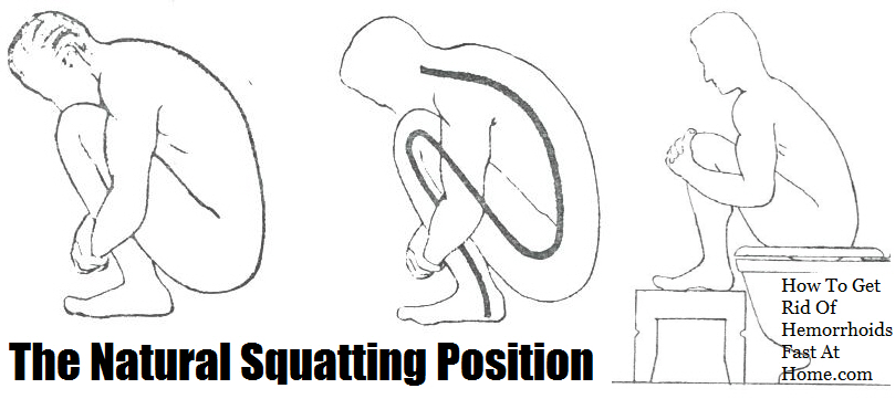 squatting position to prevent hemorrhoids