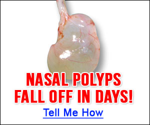 Natural Nasal Polyps Cure