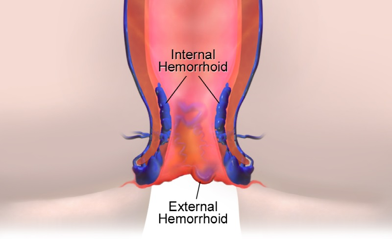 external-hemorrhoids-treatment